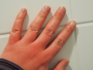 Red hands after queuing for over an hour to get into the Van Gogh museum
